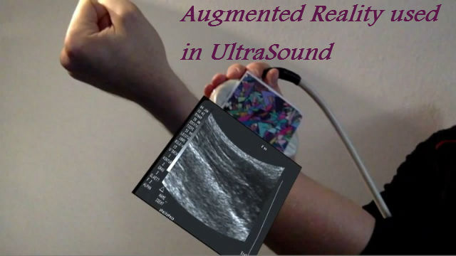 Augmented-Reality-Ultrasound