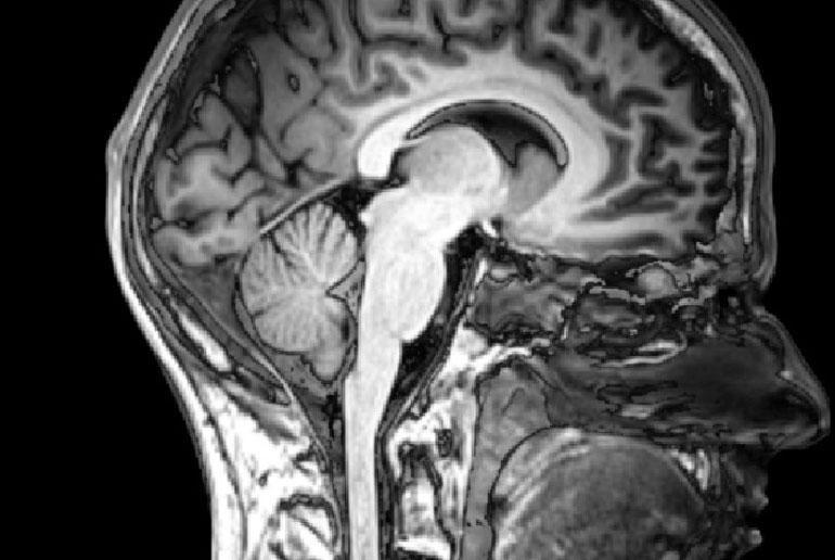 enhanced brain image data