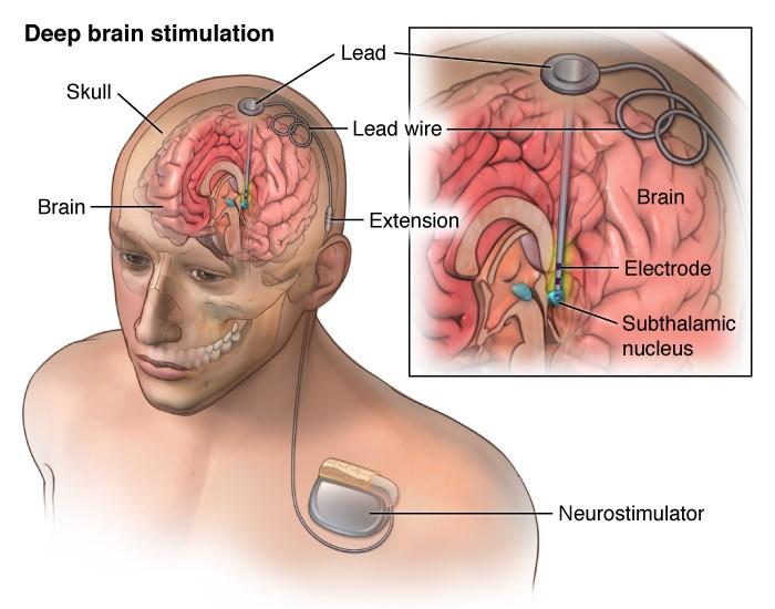 deep-brain