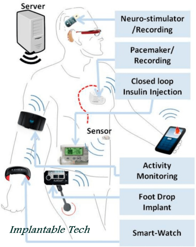 implantable_tech