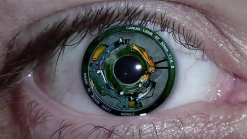 blonic eye implant