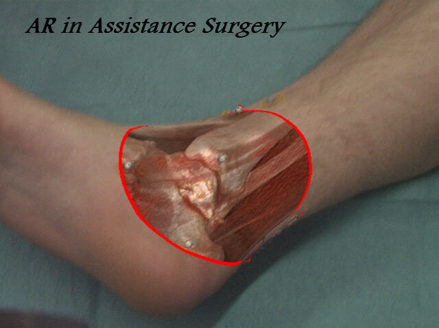 AR_Assistance_Surgery